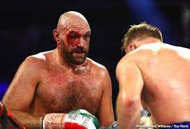 Fury to weigh 300 pounds on Wilder trilogy
